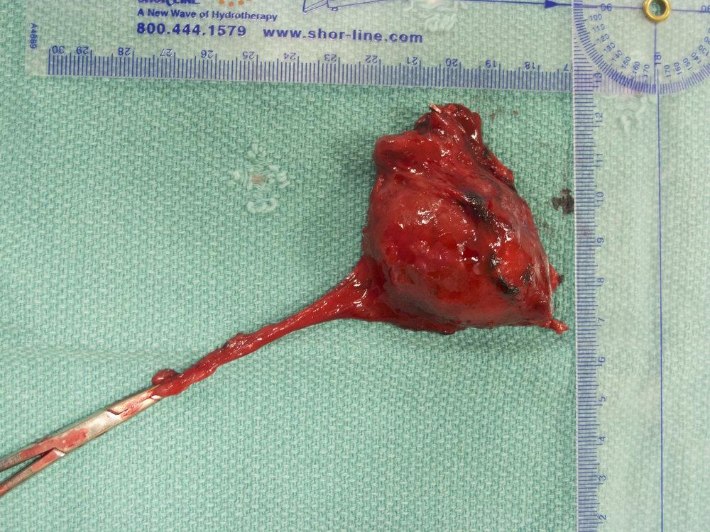 Vascular Invasion