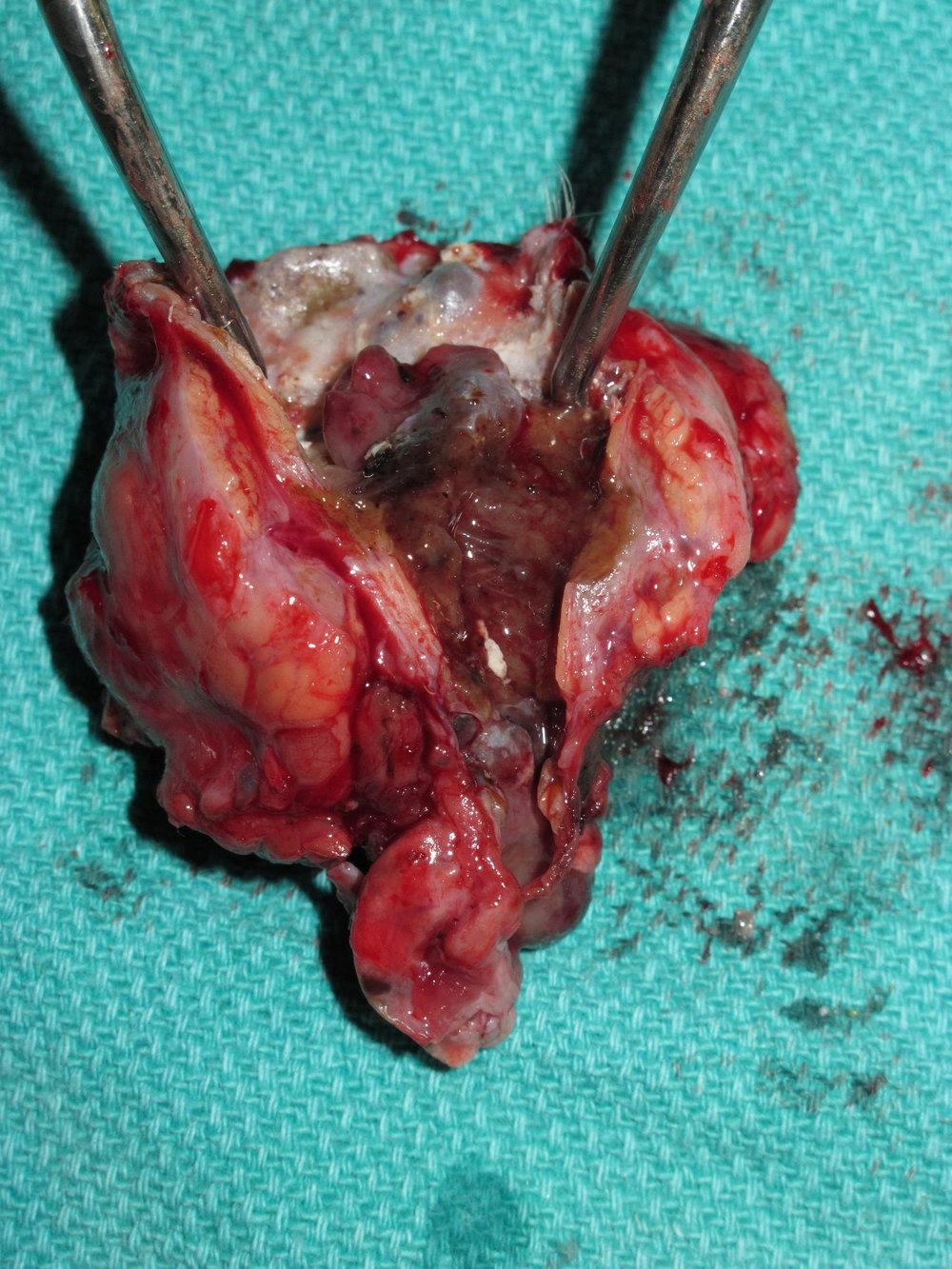 Ceruminous Gland Adenocarcinoma