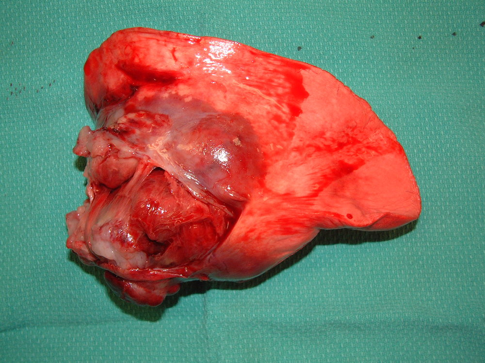Primary Lung Carcinoma - Dog