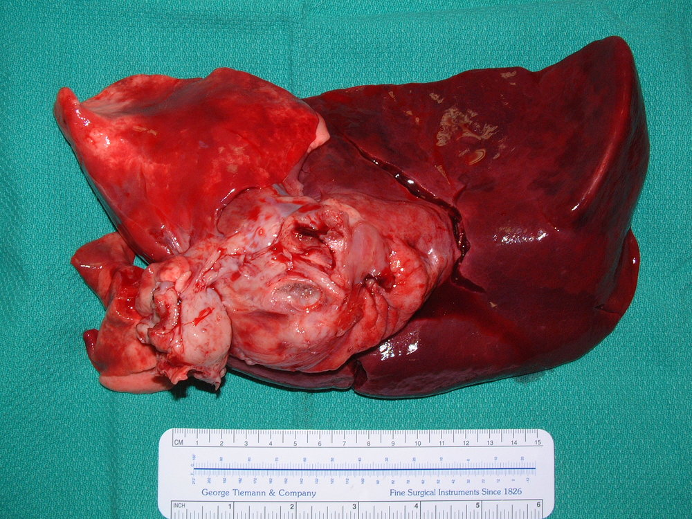 Primary Lung Sarcoma - Dog