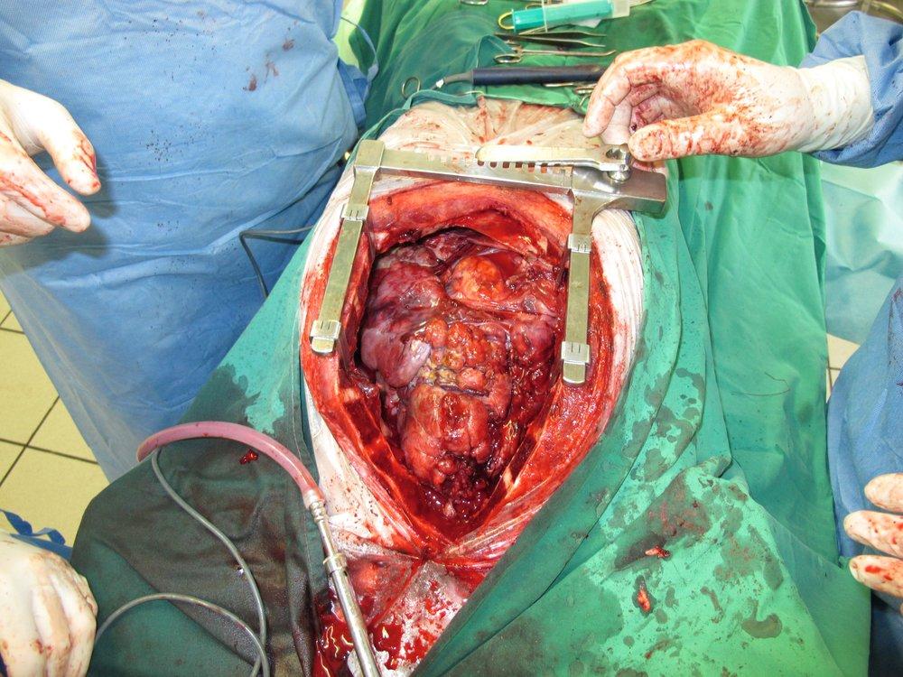 Non-Invasive Thymoma