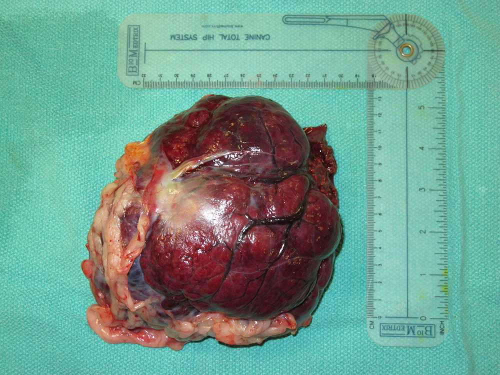 liver HCC massive 237 postop gross (right medial) 066842.JPG