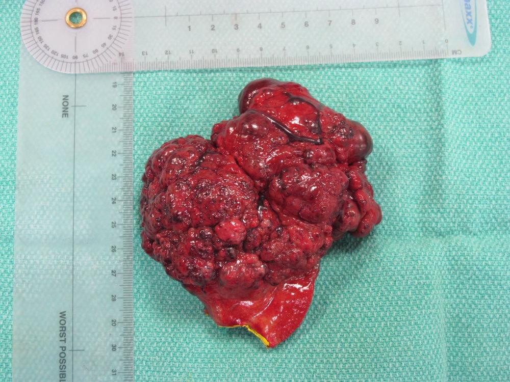 liver HCC massive 244 postop gross 063987.JPG