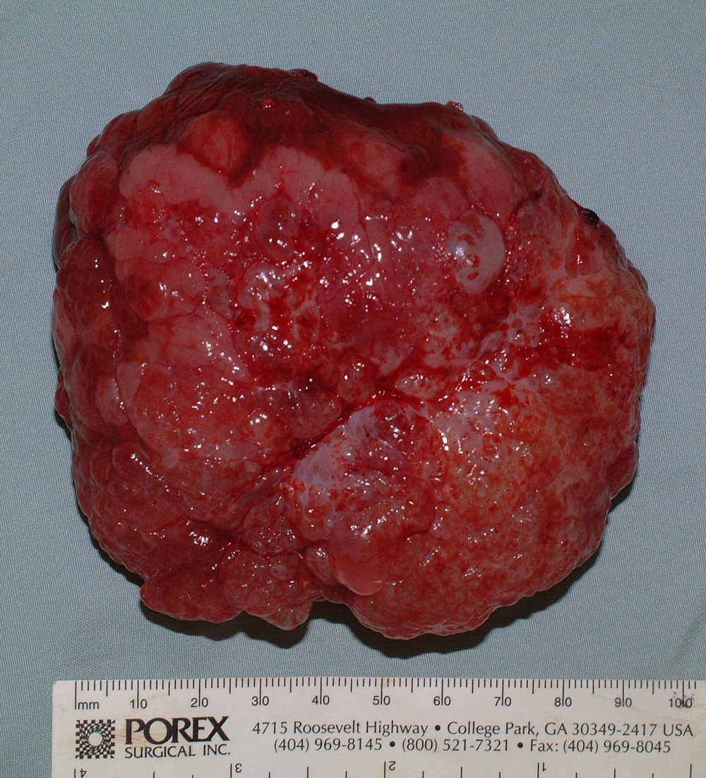 liver biliary cystadenoma 08 cat postop gross 240381.JPG