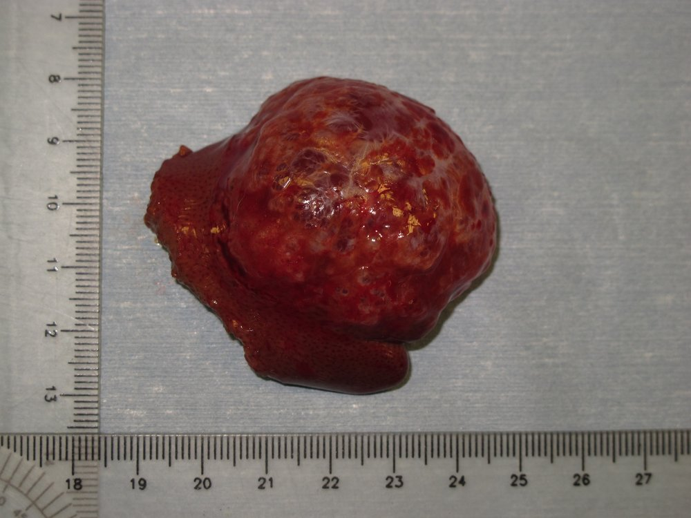 liver biliary cystadenoma 44 cat postop gross 46151.jpg