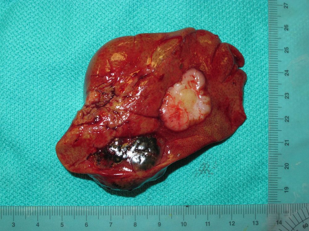 liver biliary cystadenoma 61 cat postop gross 077755.jpg