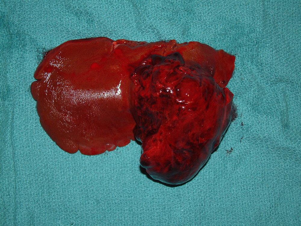 Massive Hemangiosarcoma