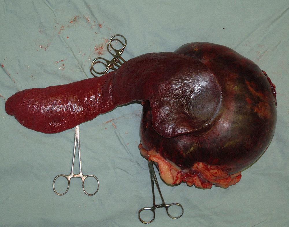 spleen hemangioma 14 postop gross 239356.JPG