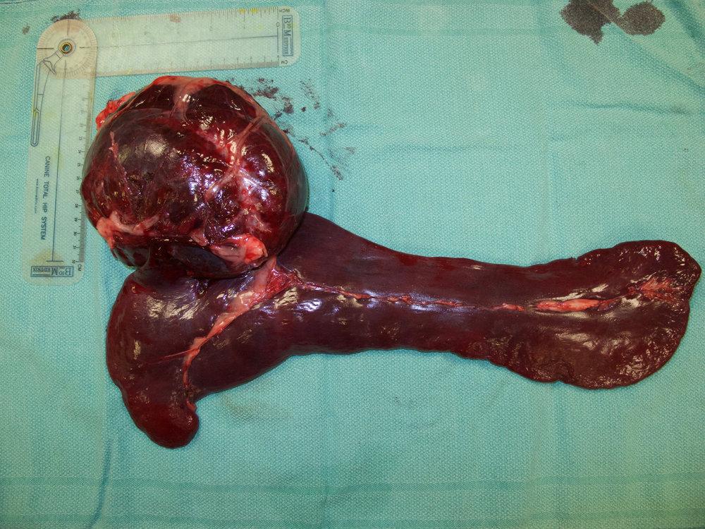 spleen hemangioma 61 postop gross 076667.jpg