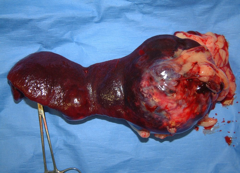 spleen HSA 008 postop gross 233087.jpg