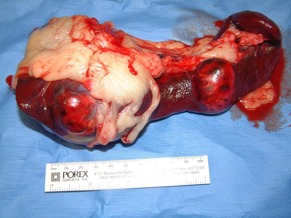 spleen HSA 010 postop gross 233087.jpg