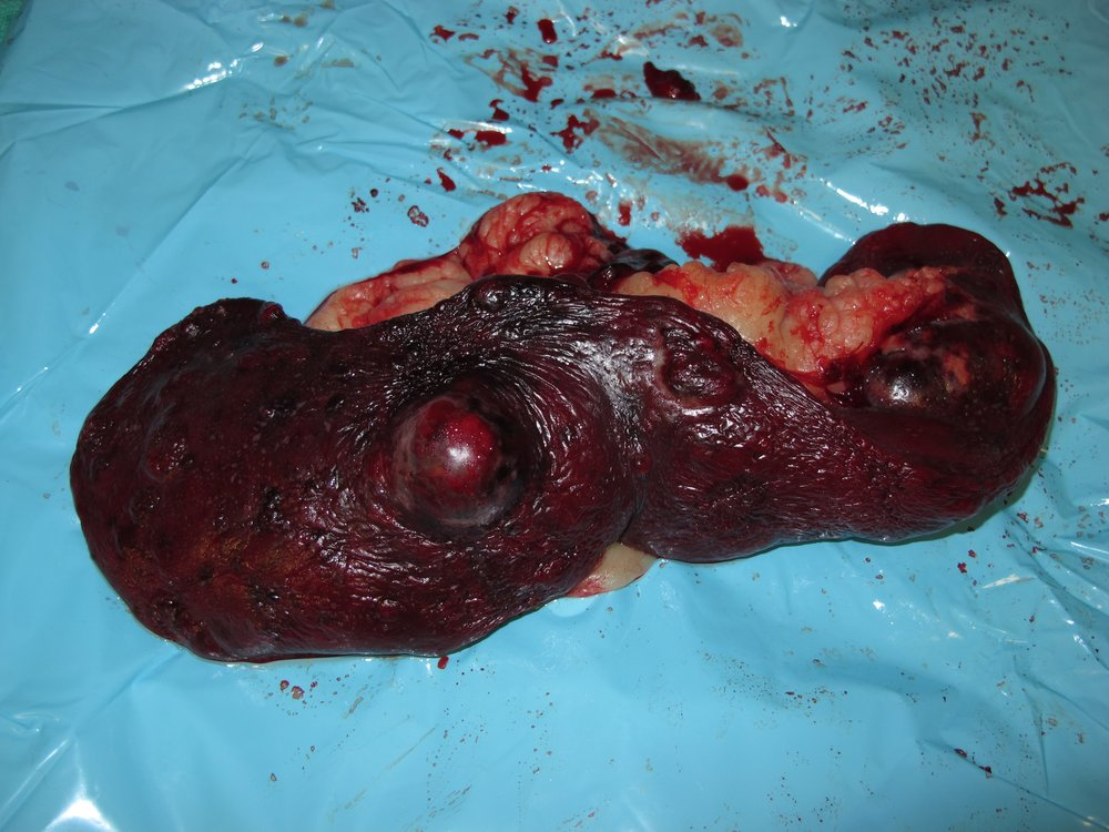 spleen HSA 105 postop gross 9093.jpg