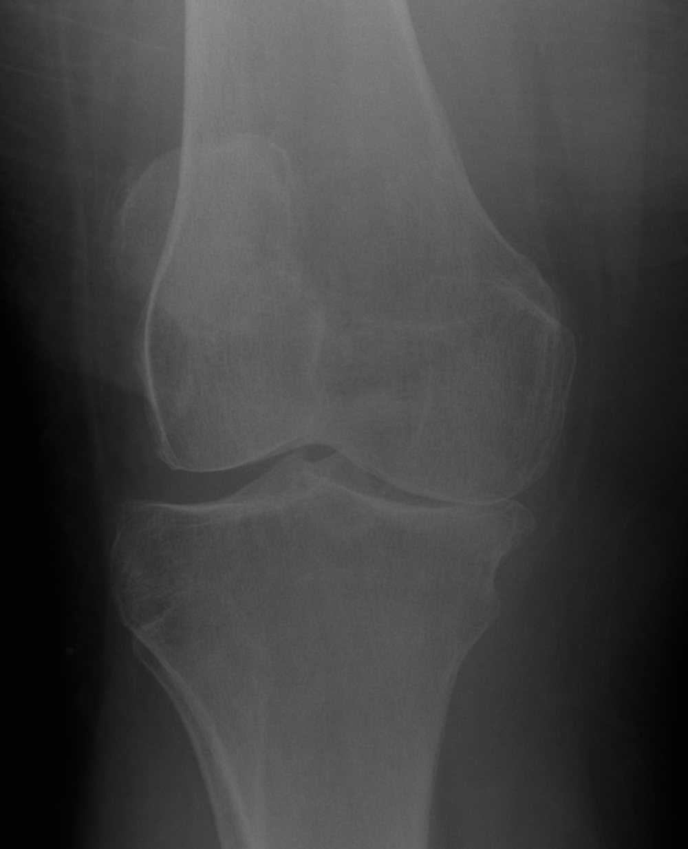 Medial Compartment Knee arthritis