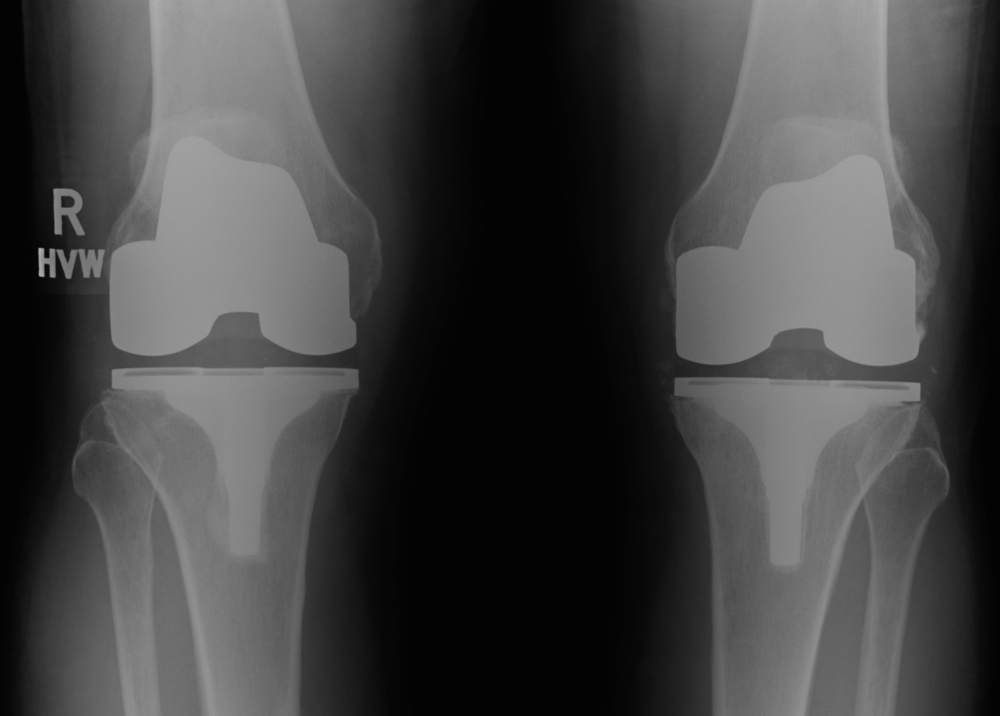 Radiograph of Bilateral Total knee replacements