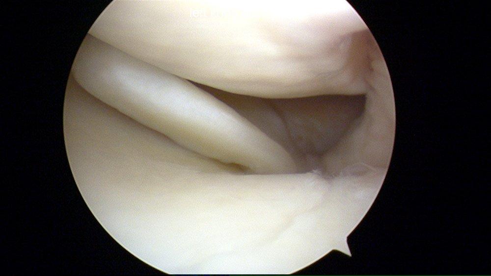 Posterior 1/3 Medial meniscus tear