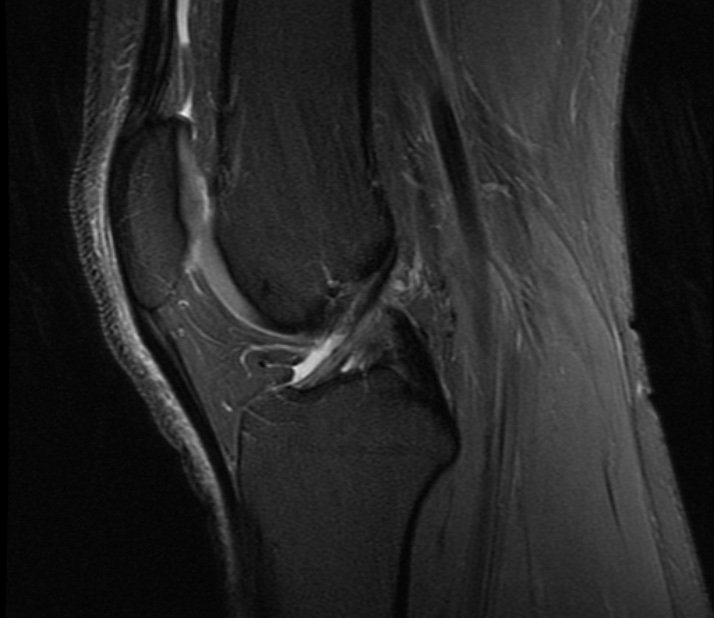 MRI Knee