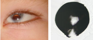 Figure 1 Examples of human and fish eyes with compromised Tfap2 function showing iris and retinal coloboma respectively.