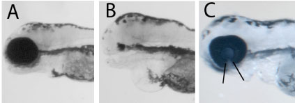 Figure 2. A) Partial loss of function of tfap2a does not affect eye development in an otherwise genetically normal fish embryo. Embryos carrying mutations in bmp4 or tcf7l1a genes but with functional tfap2a have normal eyes as in A. B-C) Anopthalmia and enhanced coloboma phenotypes result when embryos have compromised function of tfap2a and ztcf7l1a (B) or bmp4 (C) respectively.