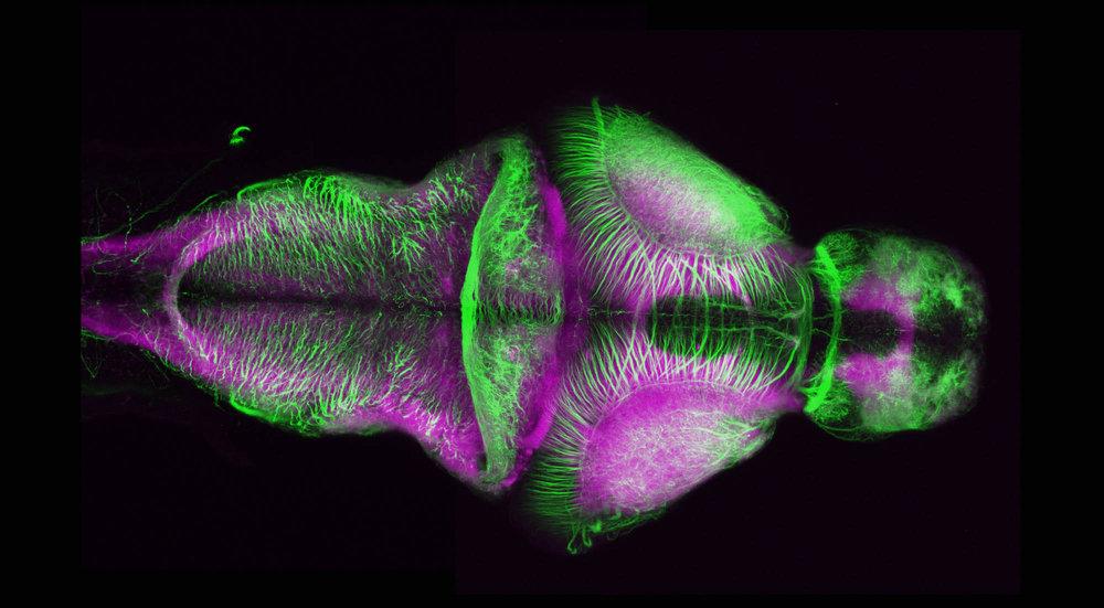 Axons and Neuropil (Dorsal II)
