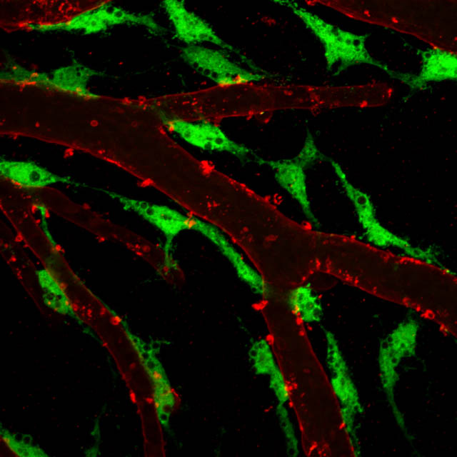 Brain Lymphatic Endothelial Cells along blood vasculature