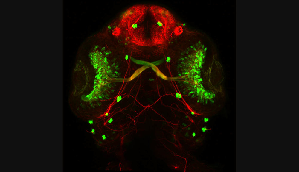 Optic nerve zebrafish