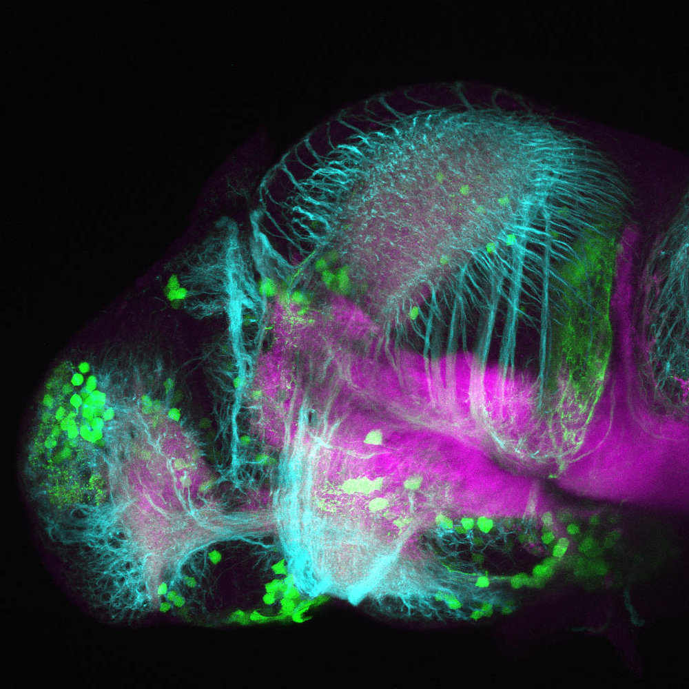 Dopaminergic neurons