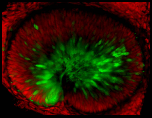 Newly born retinal ganglion cells