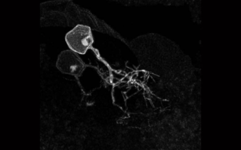Neurons in the right habenula