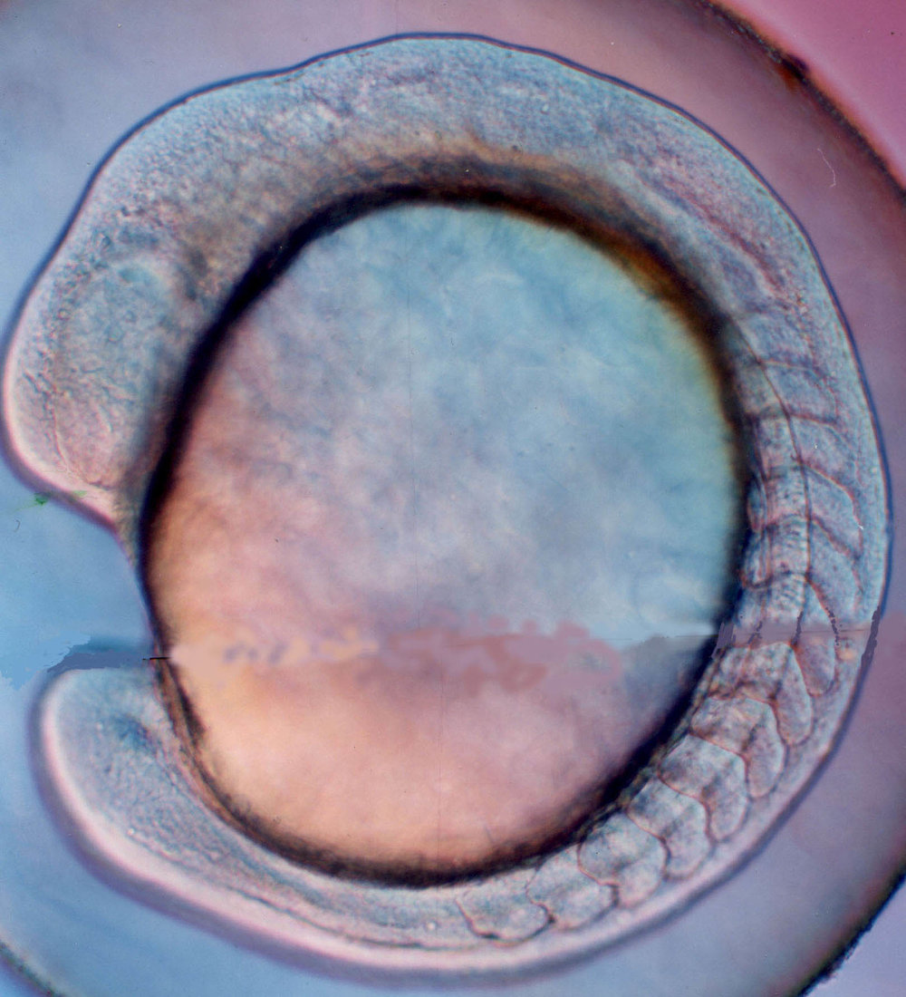 Lateral view of a living fish embryo