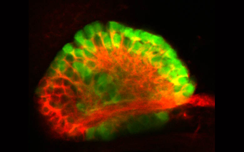 The left habenula of a Tg(ET16:GFP) embryo.