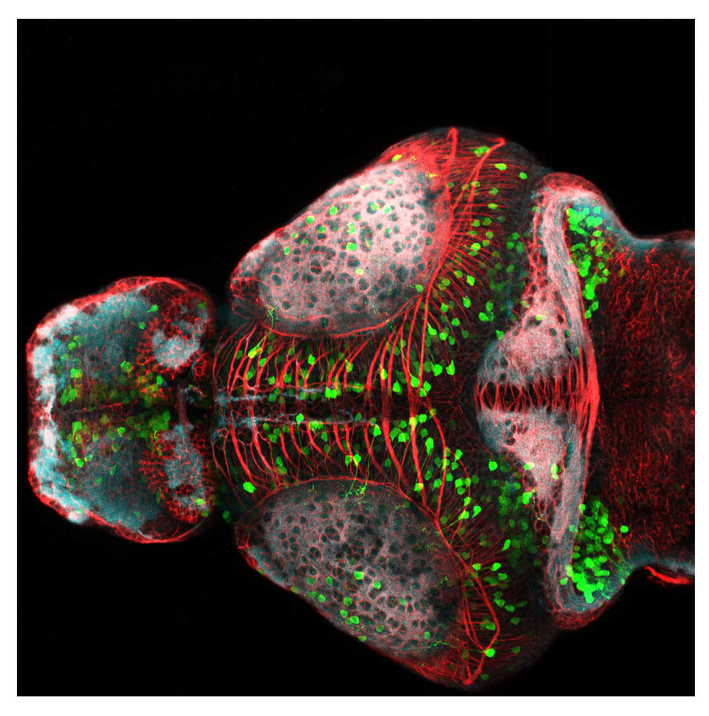 Tg(1.4dlx5a-6a:GFP) embryo stained against GFP, SV2 and acetylated tubulin