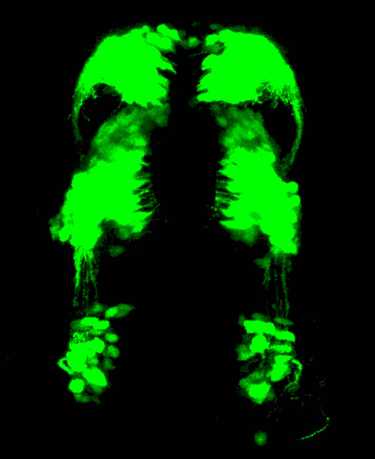 GFP labelling areas of the forebrain and midbrain of a young zebrafish embryo