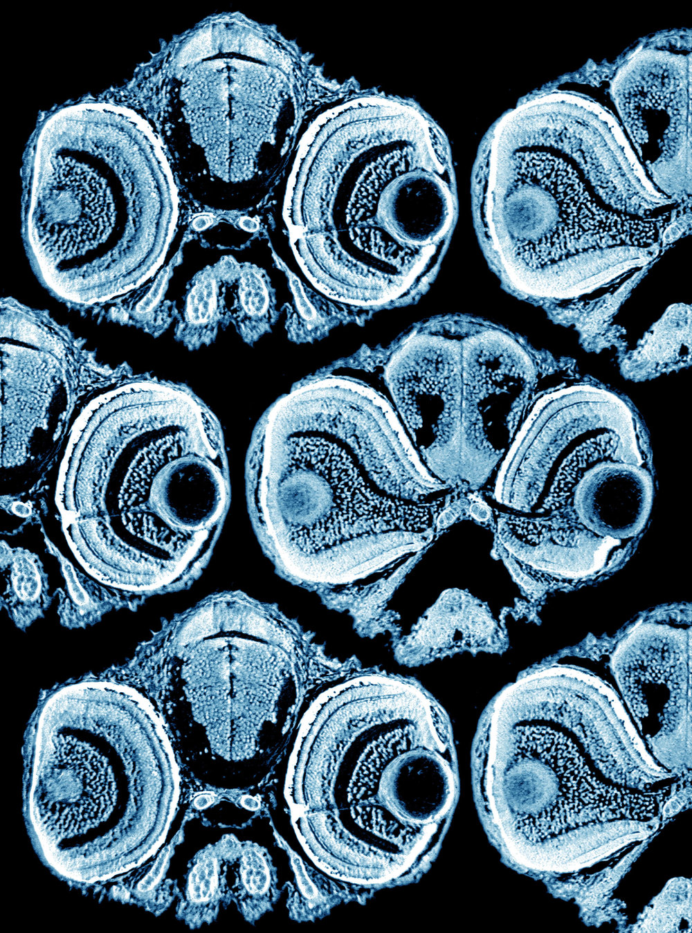 Transverse sections of zebrafish heads frontal view (blue) (cover)