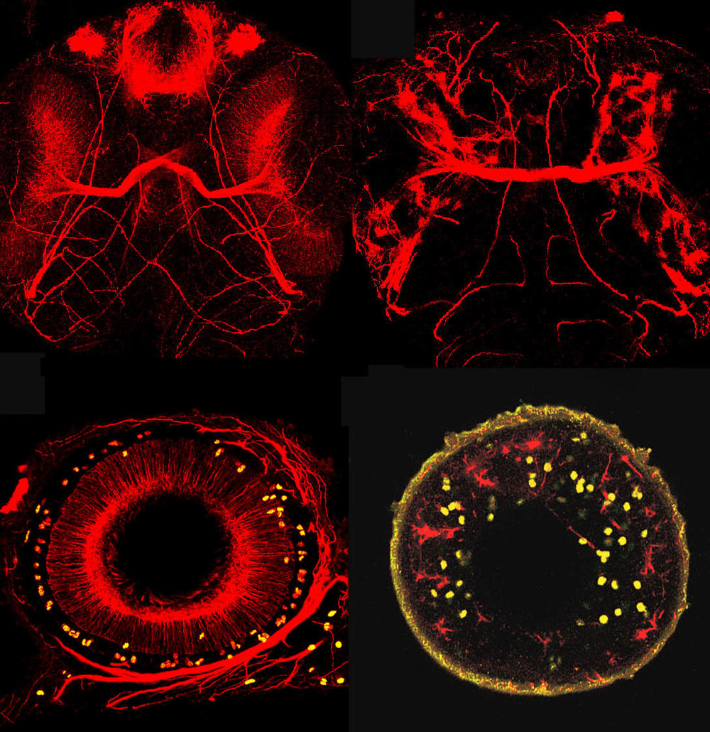 Commissural axons and dividing cells