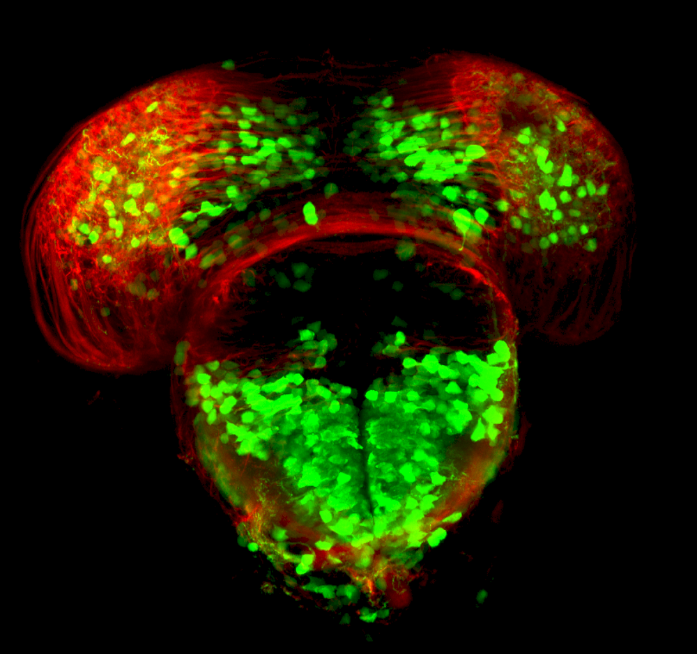 3dpf frontal section of dlx:GFP subpallium