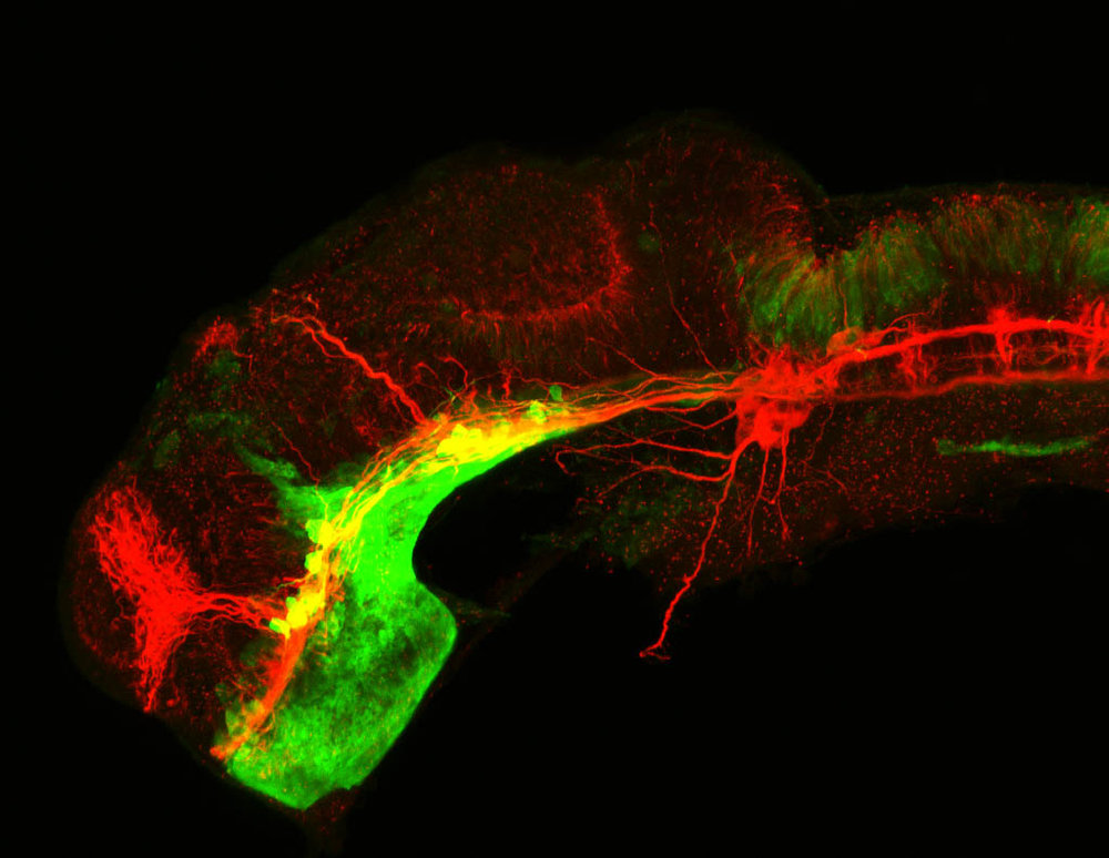 shh:GFP and tubulin lateral view of 24hpf