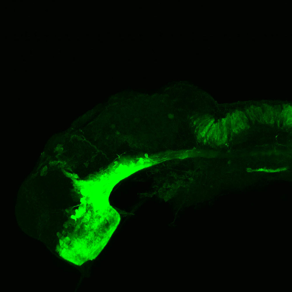 shh:GFP lateral forebrain at 24hpf