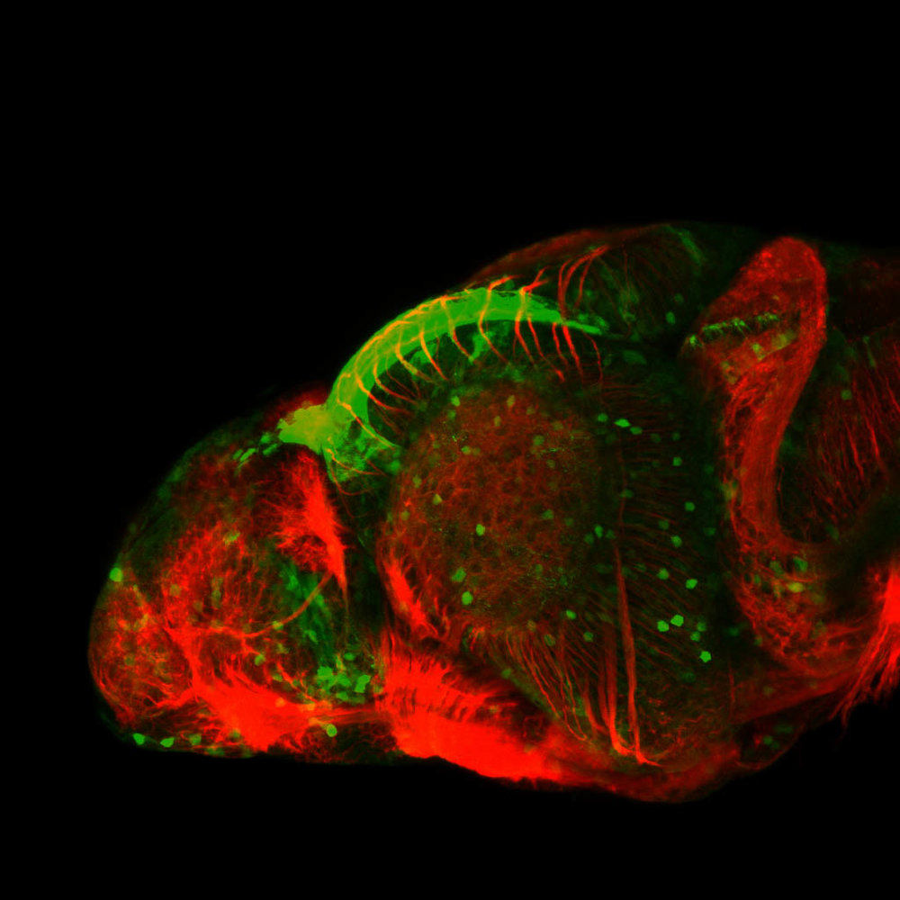 TG44:EGFP and tubulin lateral view at 4dpf