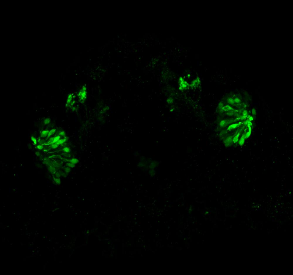 Frontal view 48hpf:anti-Calbindin