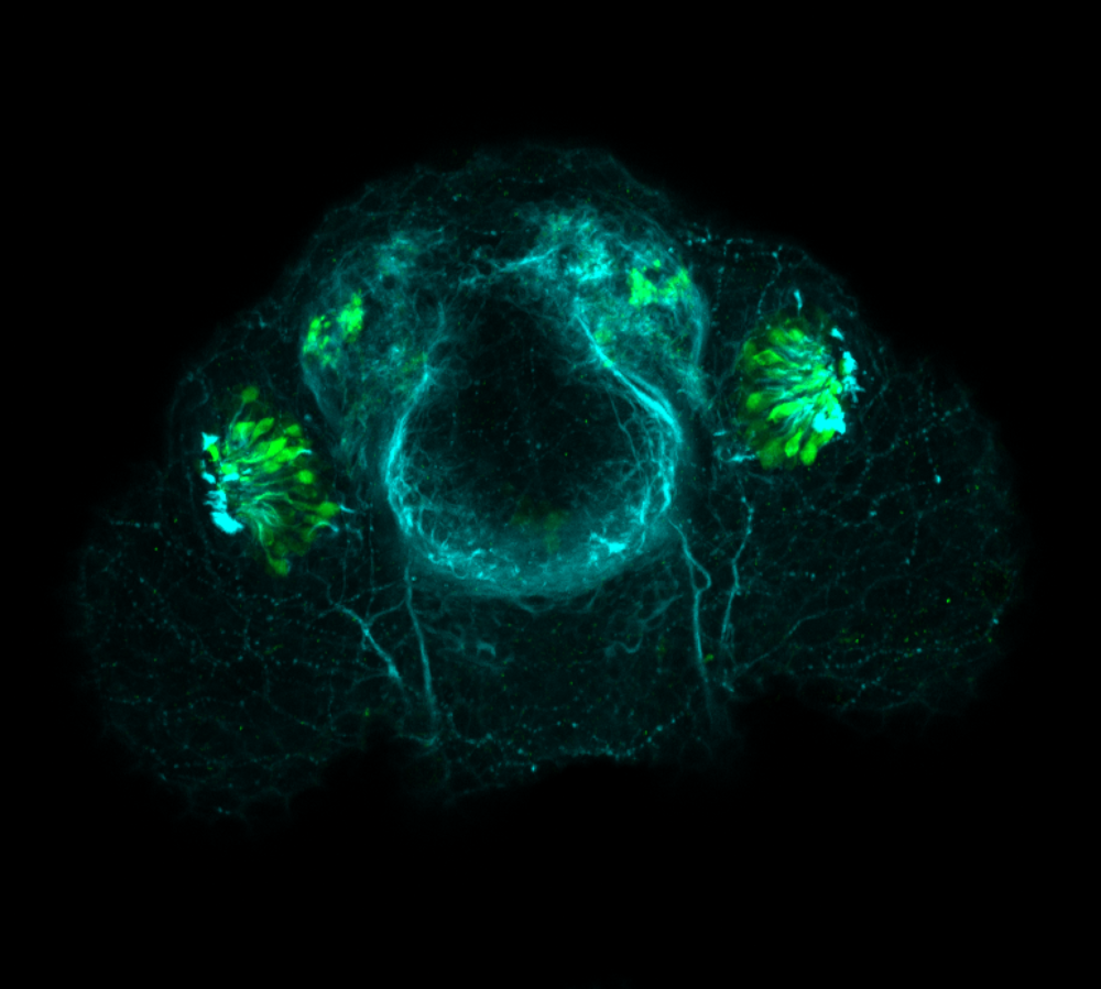 Frontal view 48hpf:anti-Calbindin and anti-tubulin