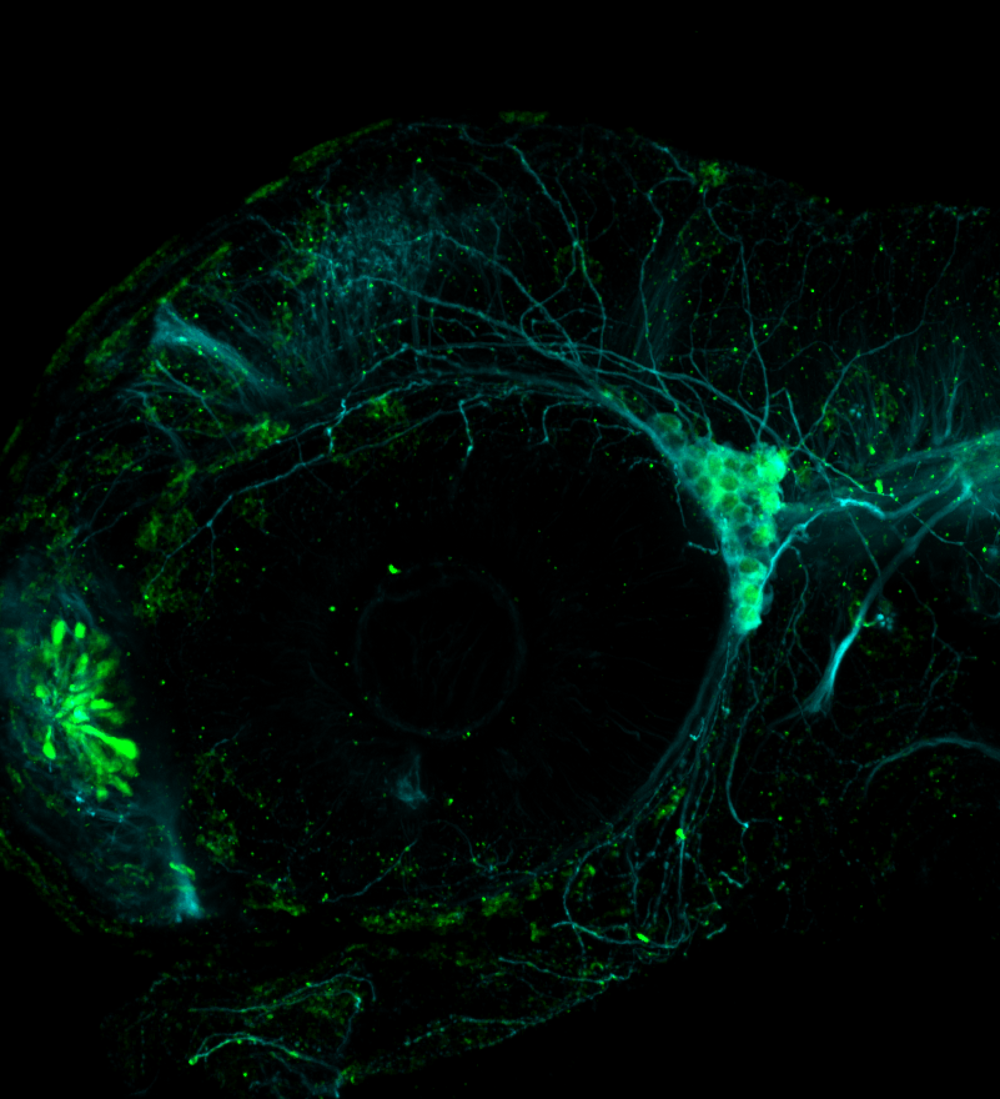 Lateral view 48hpf: anti-Calbindin and anti-tubulin trigeminal nerve expression