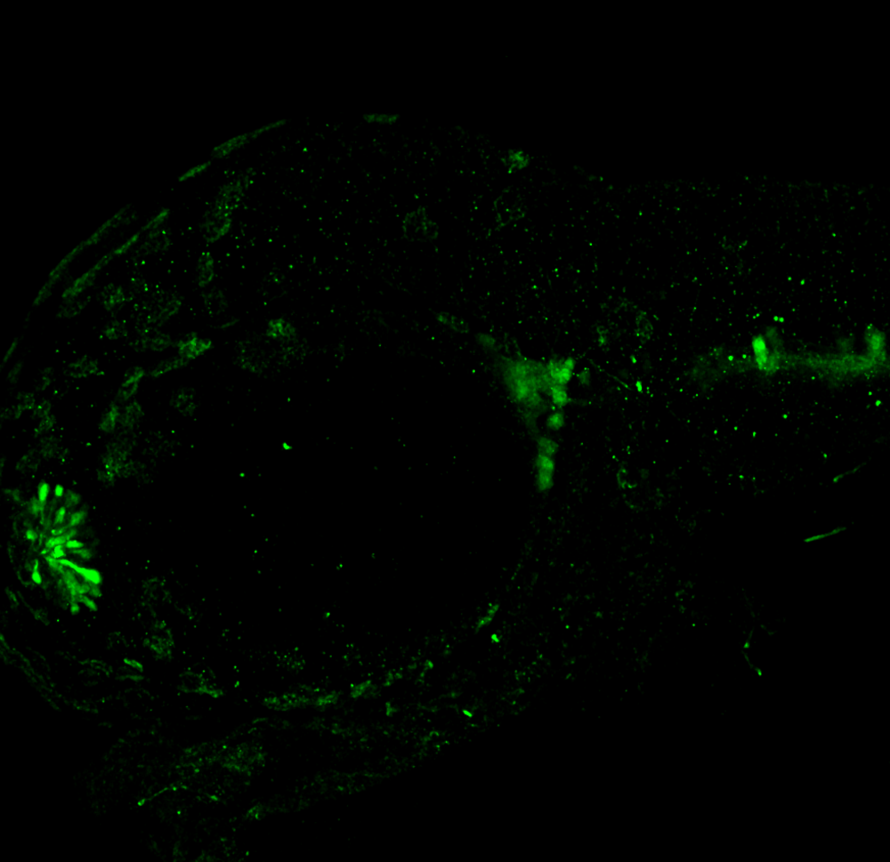 Lateral view 48hpf: anti-Calbindin trigeminal nerve expression