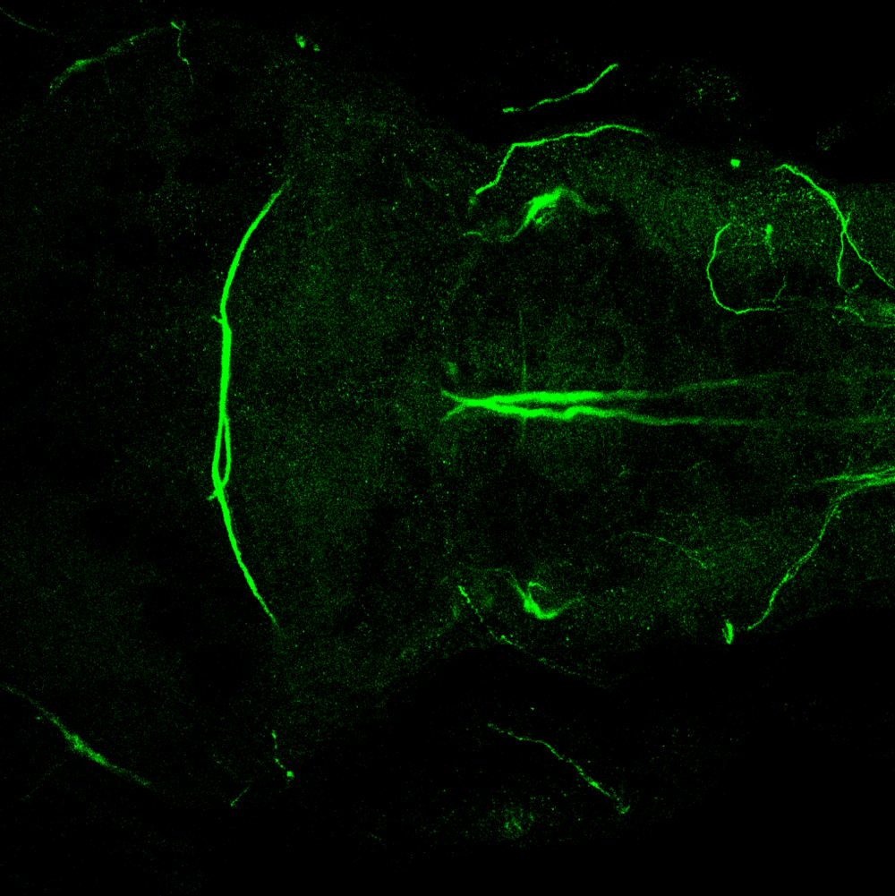 Dorsal view 5dpf of 3A10 antibody