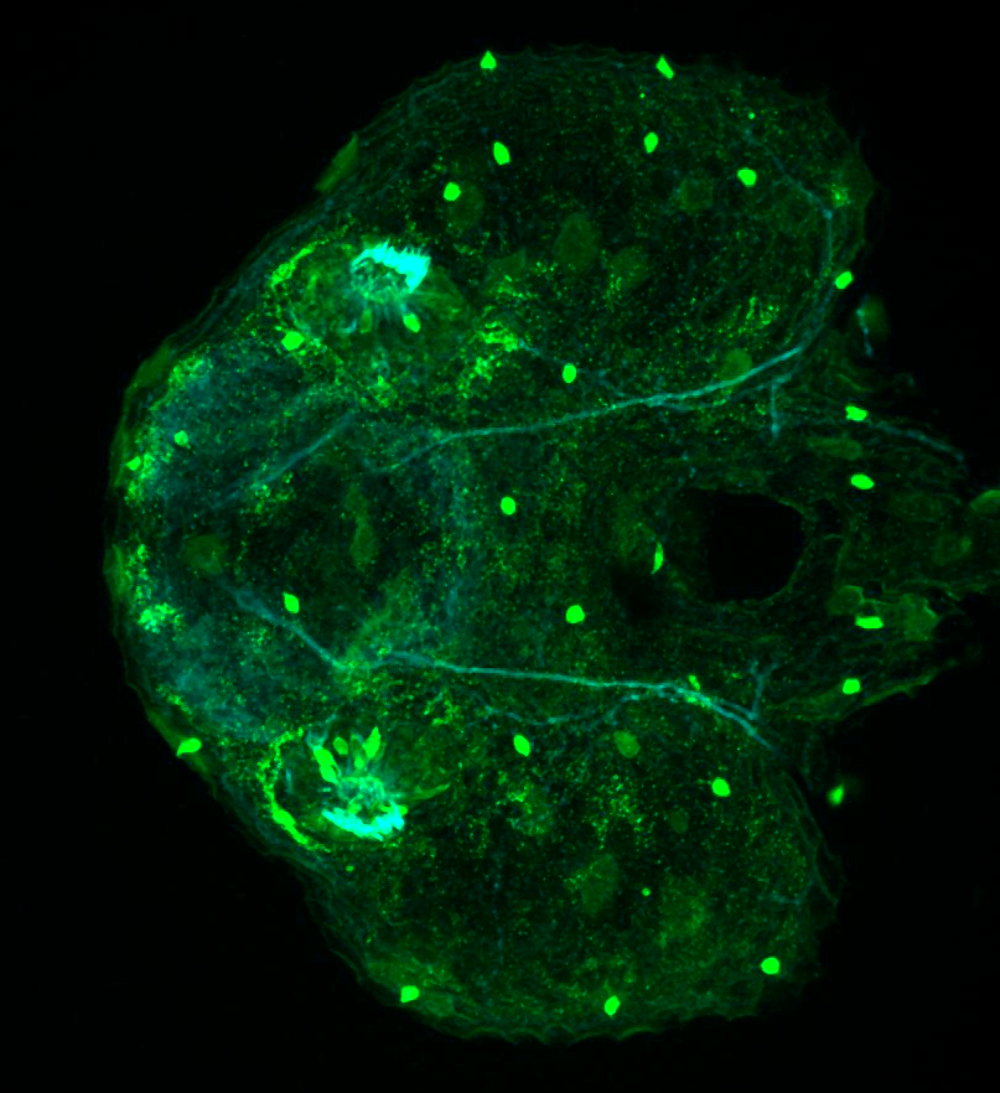 2dpf ventral parvalbumin and tubulin(cyan)