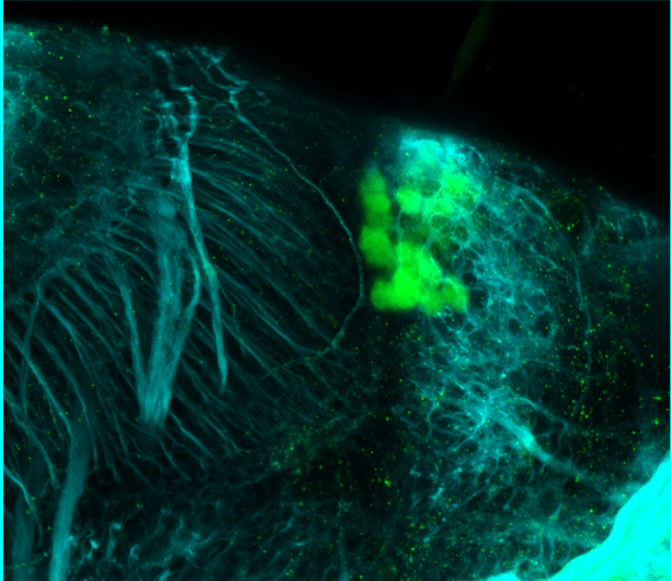 5dpf lateral parvalbumin and tubulin(cyan)
