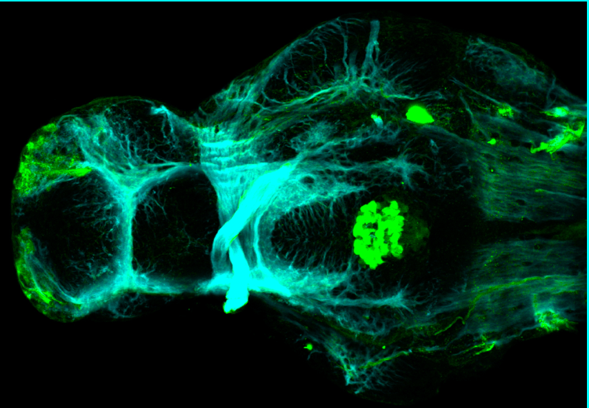 4dpf ventral view parvalbumin and tubulin(cyan)