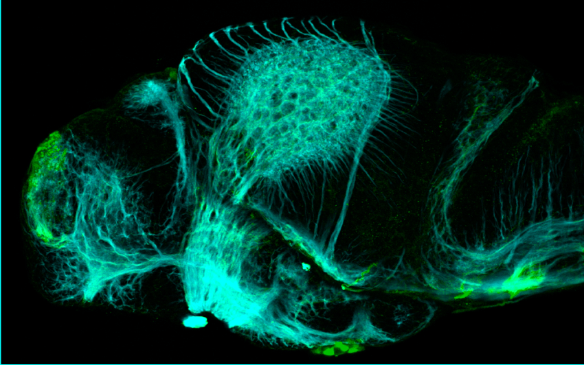 3dpf lateral view parvalbumin and tubulin(cyan)