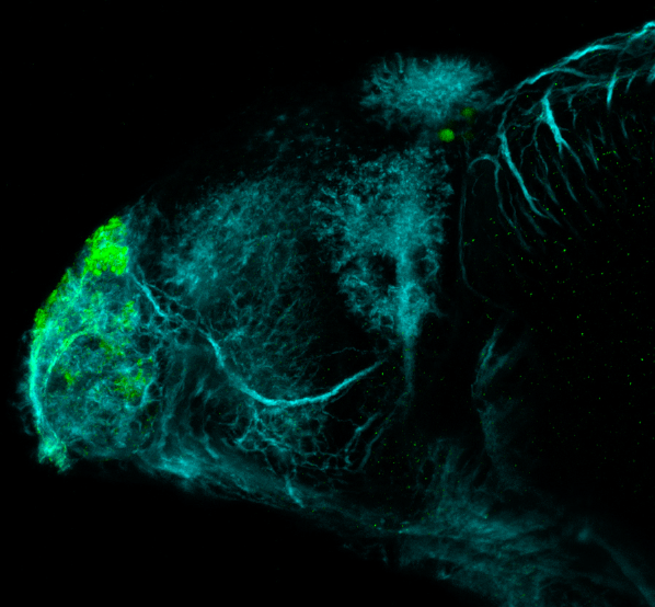 4dpf lateral view parvalbumin and tubulin(cyan)