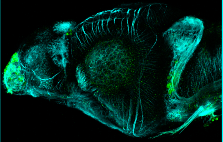 4dpf lateral view parvalbumin and tubulin (cyan)