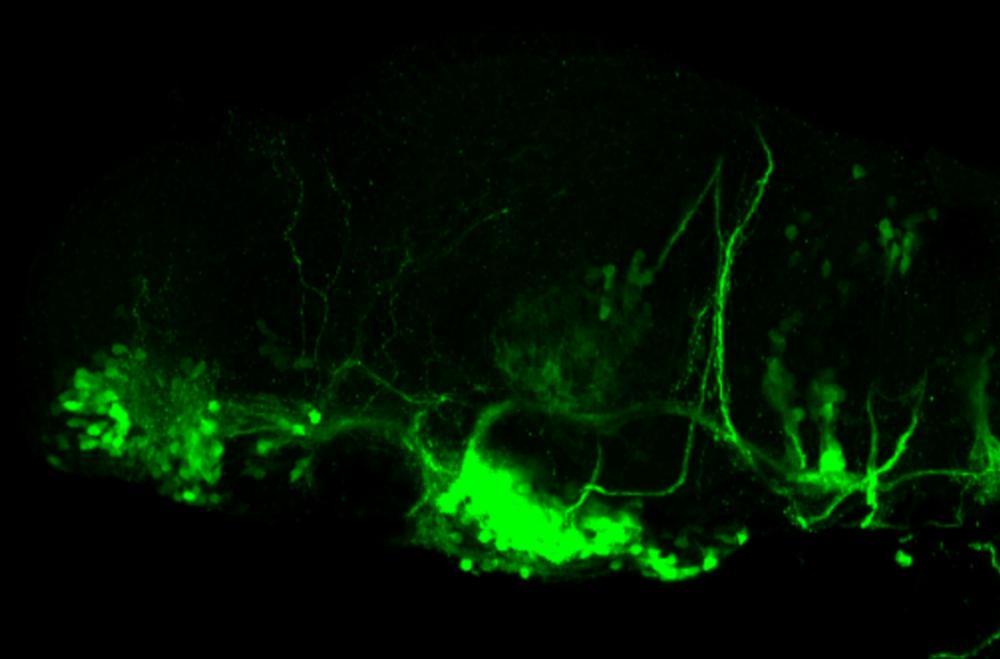 isl1:GFP 3dpf lateral forebrain
